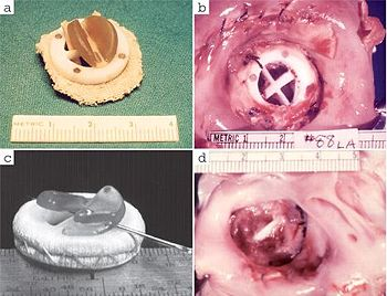 """(a) The first animal implant: a bi-leaflet valve with a Dacron single-layer sewing ring. (b) A left atrial view of thrombotic occlusion two days after implantation in a dog. (c) A modified bi-leaflet valve with enhanced sewing ring and rearranged leaflets. (d) Thrombosis two days after implantation of the modified valve."" [C]"