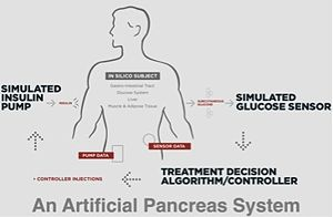 Artificial Pancreas System.jpg