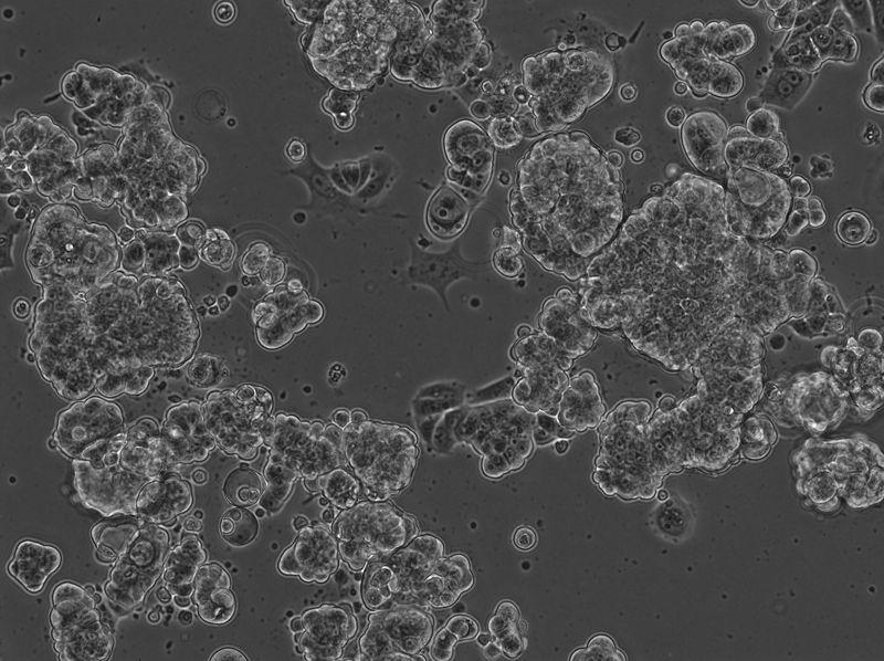 File:2016-05-28 MCF7 Well 9 no DNA phase 10x.jpg