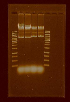 Plasmid 23 jul 2011.JPG
