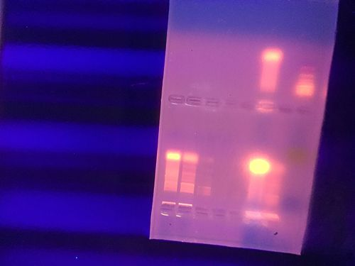 PCR amplification results