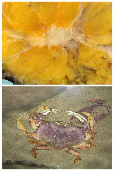 File:Cancer vs crab.jpg