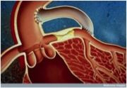 Figure 1. Coronary artery bypass graft. [14]