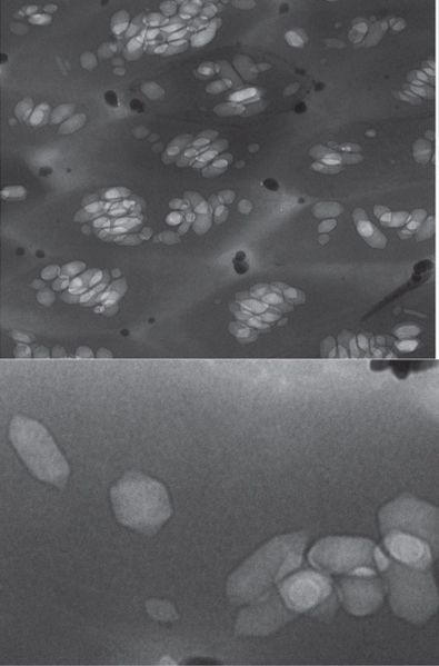 File:Serratia gas vesicles.jpg