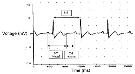 Labeled ECG S11.png