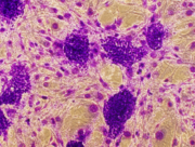 ES cell colonies growing over feeder cells. Stained with crystal violet and imaged with a 40X objective.