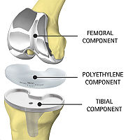 Figure 3. Model of a knee implant.[3]
