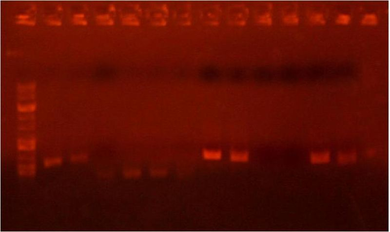 Image:Analytical gel 6 22 2.jpg