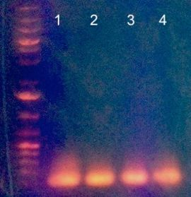PCR gel