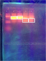 Results of the electrophoresis