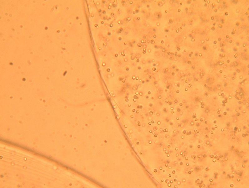 File:S08M3 alginate-pic-crop.png