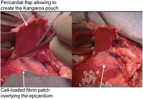 Fibrin patch[15]