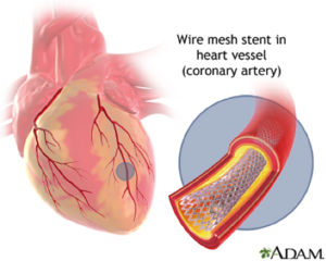 Figure 1 This figure shows how a stents is used to prop open an artery in the event of plaque build up.[1]