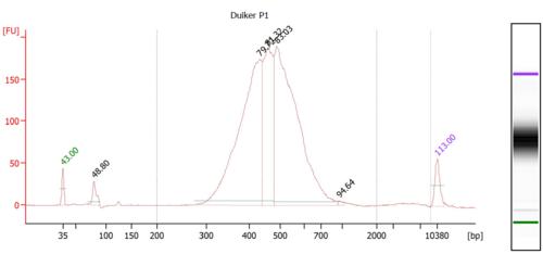 DuikerP1 Bioanalyzer.PNG