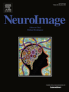 NeuroImage RAVE cover
