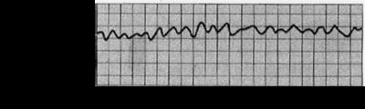 Ventricular Fibrillation ECG S11.png