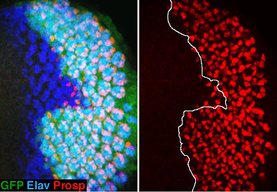 Photoreceptor differentiation (red) is delayed in insulin receptor clones (marked by the absence of GFP expression
