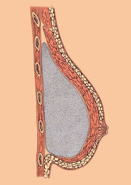 File:Breast.jpg