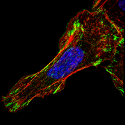 A migrating MTLn3 breast adenocarcinoma cell. The protein Mena is shown in green, the actin cytoskeleton is in red.