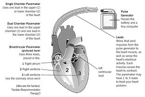Types of Pacemaker Reference 11