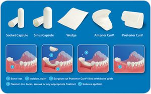 Various commercially available collagen-based dental implants