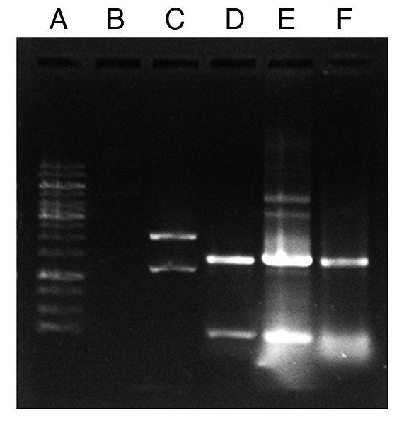 File:Colony PCR check Jesslyn.jpg