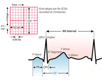 A typical ECG recording (Friederich,Patrick)[5]