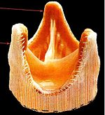Porcine heart valve preserved with glutaraldehyde [B]