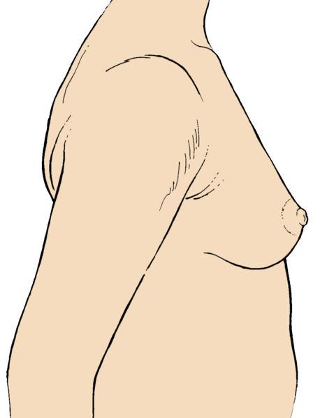 File:Breast6.jpg