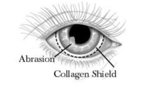 Application of a collagen shield on a cornea