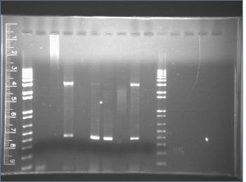 PCR to extract the KaiABC sequence from CyanobacteriaClick for legend