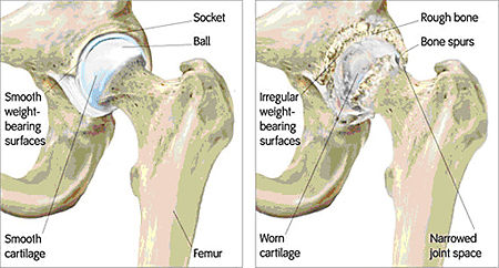 Source B: Depiction of a Healthy Hip Joint Versus a Damaged Hip Joint .