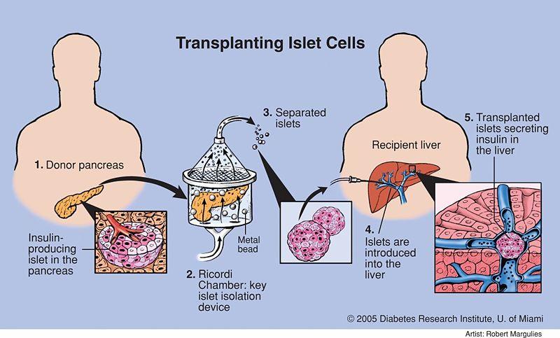 File:Transplanting Islet Cells.jpg