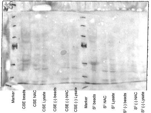 26052010 Ponceau staining.jpg