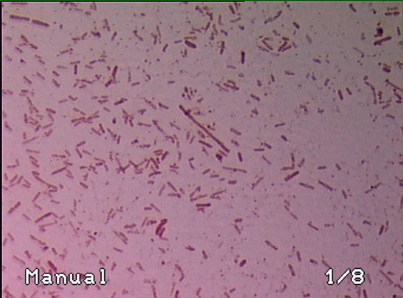 File:Gram-stain EYFP Ecoli (2).BMP