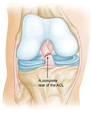 Source 2: Depiction of a tear in the Anterior Cruciate ligament..