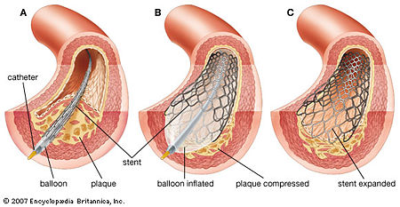 Figure 1. Once the catheter has been maneuvered to the site of blockage [A], the balloon is inflated [B], which deploys the stent. The stent remains open upon removal of the catheter [C] Ref. [3]