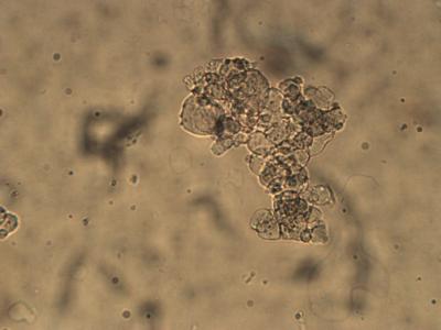 Hydrogel1.png
