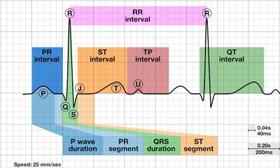 A typical ECG recording with normal wave amplitudes and intervals