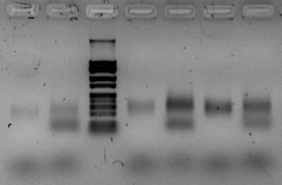 PCR2 09102015.jpg.png