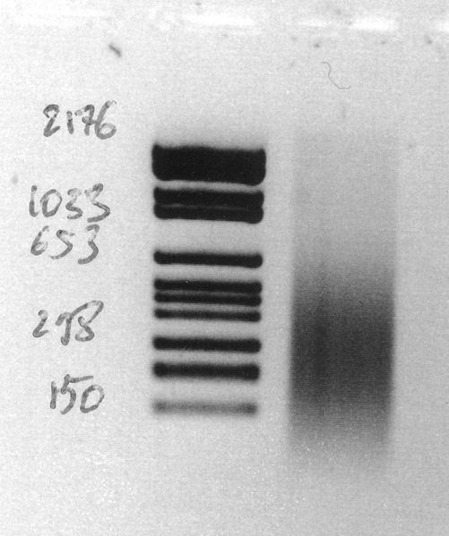 File:Human eye chromatin 8-4-09.jpg