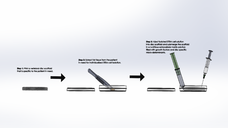 File:Overall Procedure.PNG