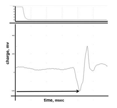 Sample EMG Recording S12.jpg