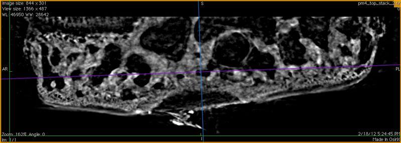 File:Pm4-before-coronal1.tif