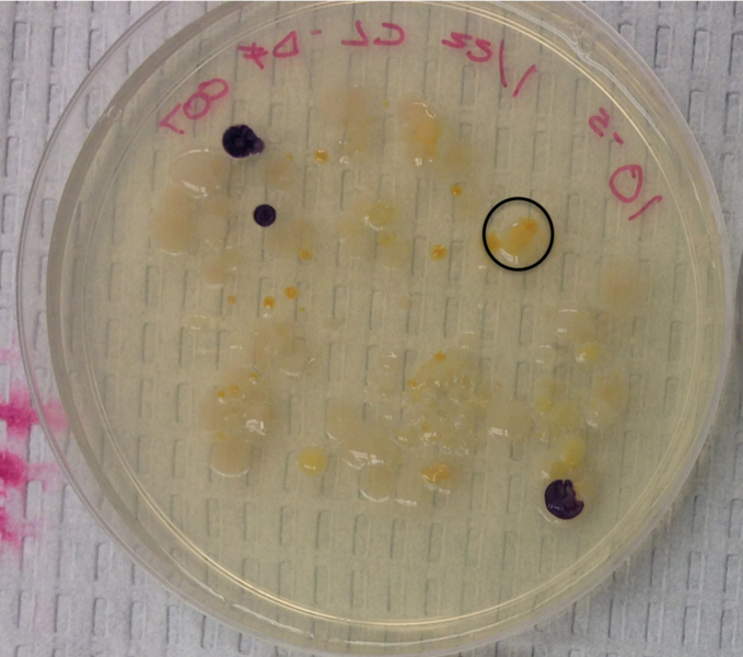 Image:DEFbacterialcolony5.png
