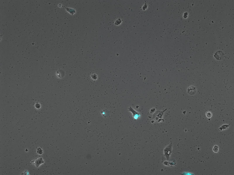 File:U2OS transfected BD006 Well 1 phase CFP 10x Image 2 2015-04-01.jpg