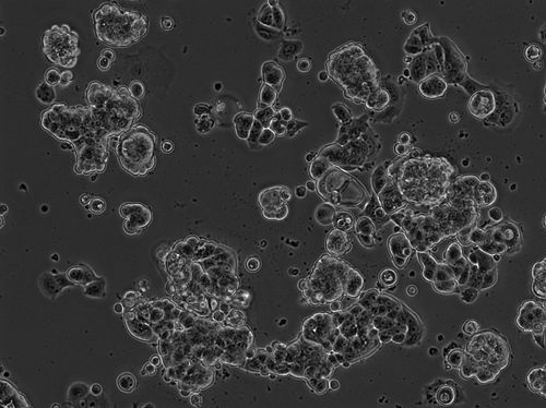 2016-05-28 MCF7 Well 3 no DNA phase 10x.jpg