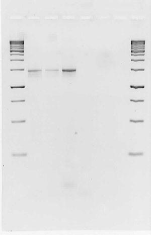 PCRA7p12010