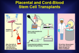 Cord Blood Banking Cost >> Cord Blood Banking by Tiankai Zhang - OpenWetWare