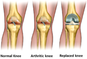 Total Knee Replacement (Source)